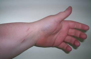 Hand 1 by ironholly-stocks