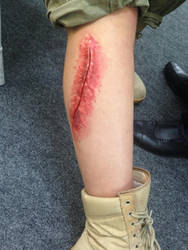 Special Effects Scarring by Gingeralert2