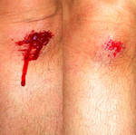 Scraped Knee by hyenacub-stock