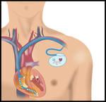 pacemaker by fluidcreativestudio