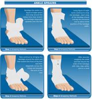 ankle sprains by fluidcreativestudio