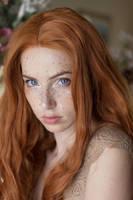 Freckled VIII by MeganCoffey