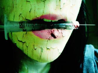 Lip Injections by MabMeddowsMercury