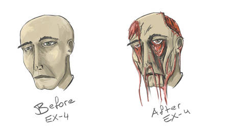 Ex-4 by al-din