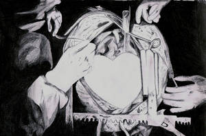 Open Heart Surgery by KeiKeiAi