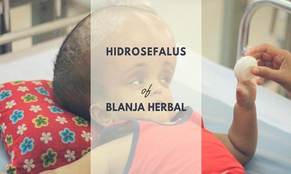 Obat Herbal Untuk Penyakit Hidrosefalus