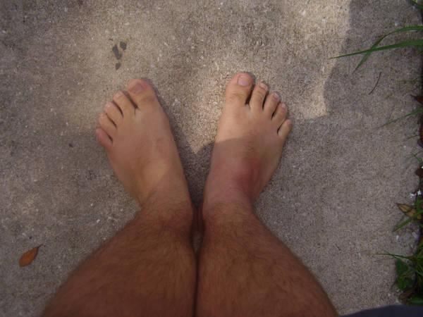 My Fat Flintstone Feet By Wolfman 88 On Deviantart