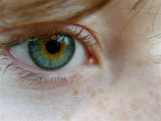 Central Heterochromia by thelifestream