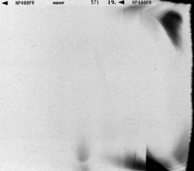 Texture_Neopan by StephanePellennec