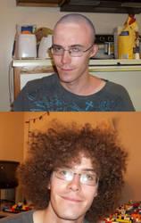 male pattern baldness by mastersmith