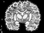 brain slice by 4Setesh4