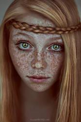 freckles by Mastowka