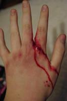 Stupid Accidents - Scissor Fight by SometimesAliceFX