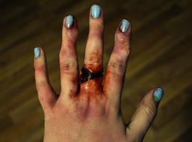 Broken Fingers by SometimesAliceFX