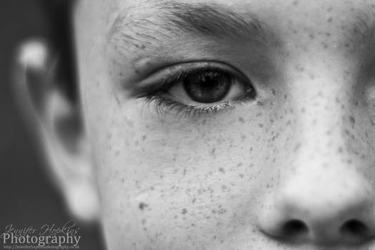 Freckles by kinipelahh
