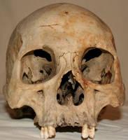 Skull Stock Photo 05 by Aleuranthropy