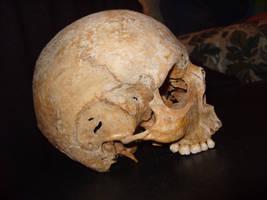 Skull by ChristasVengel-stock