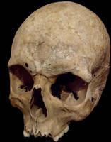 skull 3 by ChristasVengel-stock