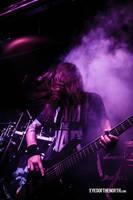 Pyorrhoea band live by eyesofthenorth