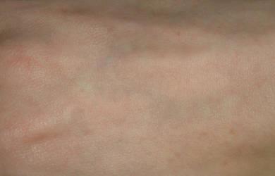 Skin texture by Babybird-Stock
