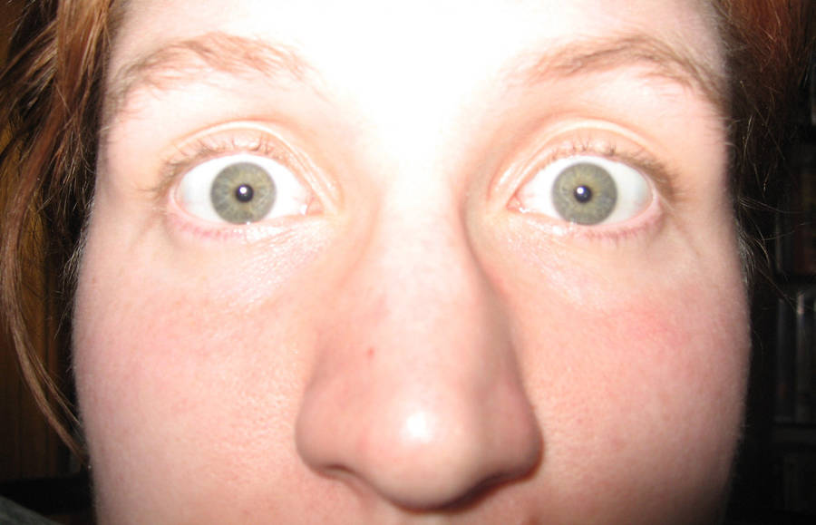 JimmytheScratch's Profile Picture