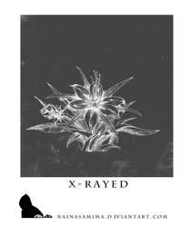 X - R A Y E D by nainasamima