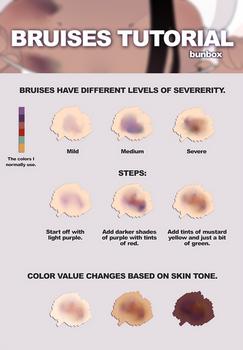 Bruises Tutorial by Bunsiebox