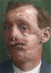 Facial reconstruction, man with broken face by sethlebatard