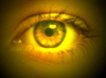 Yellow... by DaughterNature