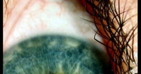 the eye by 0oRomaino0