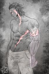 Phantom Limb Syndrome by ElyonBlackStar