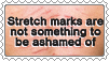 Stretch Marks Stamp by SumacTree