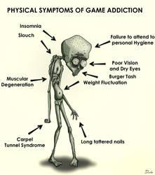 Symptoms of Game Addiction. by Davio