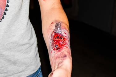 Wounds: Arm with glass fragments by Surfinger