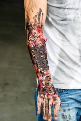 Wounds: Burned arm by Surfinger