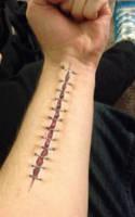 Stitches by PlaceboFX
