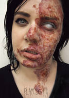 Chemical Burn by PlaceboFX