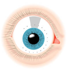 GProbe Eye map by StevenHanly