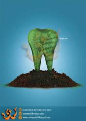 Implant by msaeedd