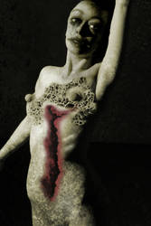 Post Abortion Stress Syndrome by vampirelover999