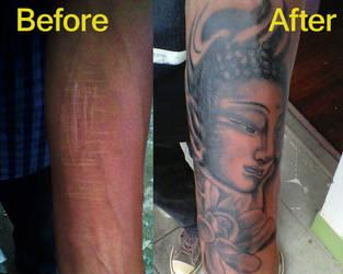 Tattoo Over Scars Buddha By Xkrkx On Deviantart