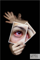 Infection by YasminaMoya