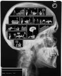 Inside the head by theboss2
