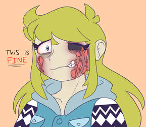 Acne scars (sorta vent) by synnibear03