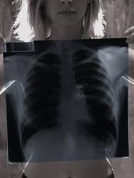 X-Ray 01 by atila