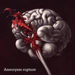 Brain aneurysm rupture by cilein