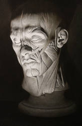 Cast- Half flayed man by Miles-Johnston