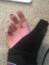 I fractured my wrist... again by StitchUpPatch