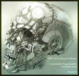 Prosthetic Skull by Nicoll