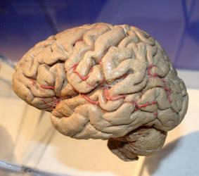 Denver Museum Anatomy Brain 235 by Falln-Stock